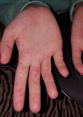 fáj a kéz és a láb ujjai