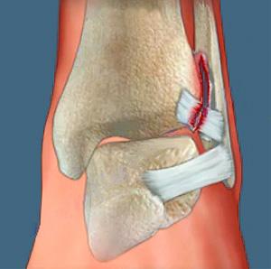 Ortózis lógó lábával
