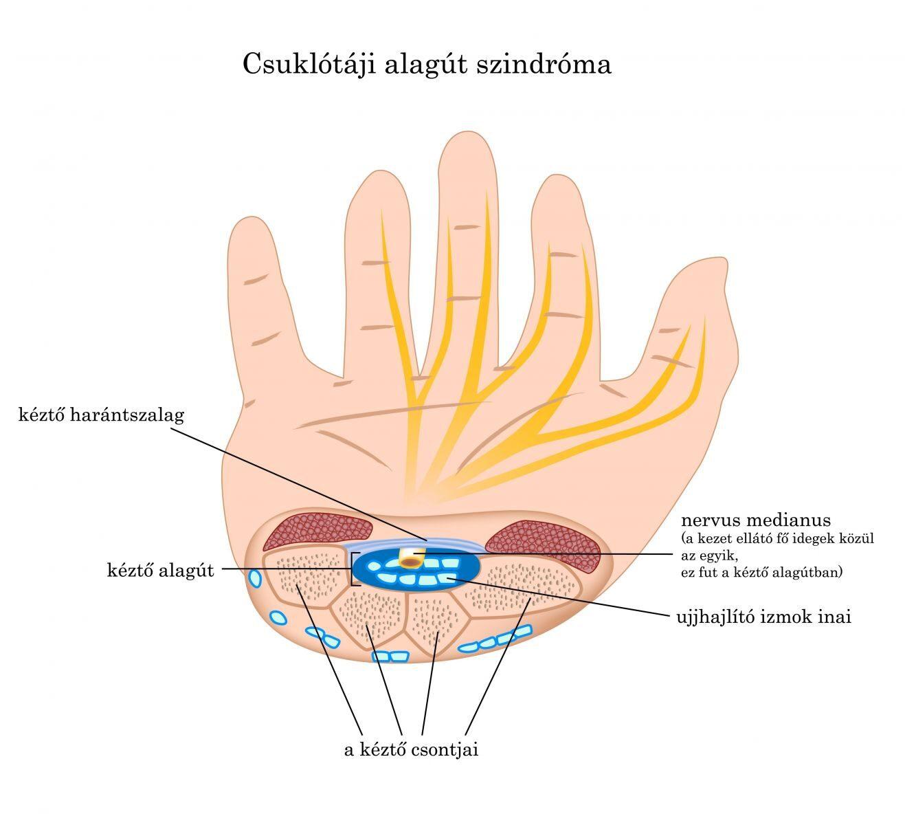 milyen kenőcsök az ujjak artritiszére gyógyszer osteochondrozis esetén