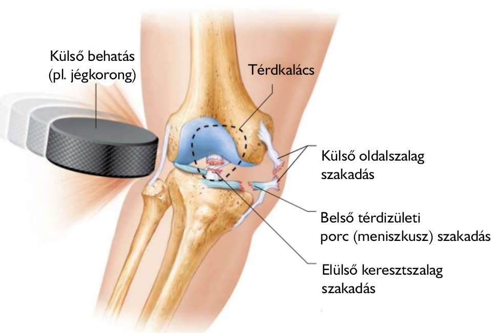 hát- és csípőfájdalom kezelése