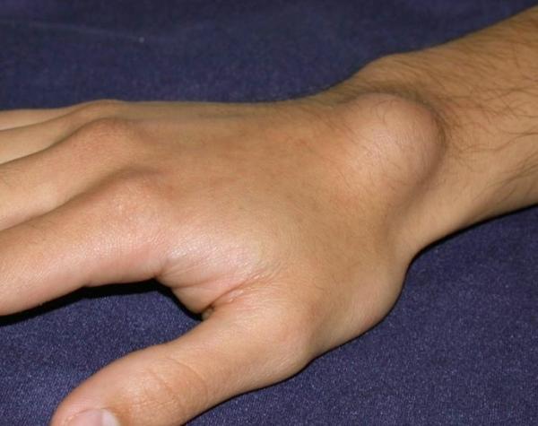 ízületi fájdalom a csukló kezelésében