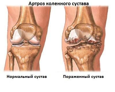 gyulladásgátló osteochondrozis kenőcs a műtéti ízület artrózisának kezelése