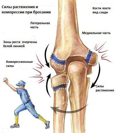 a térd artritiszének klinikai képe artrózis térdízület kezelési fóruma