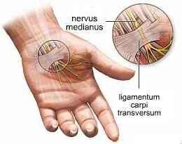 duzzadt és fájó ujjízület amaranth olaj ízületi kezelés