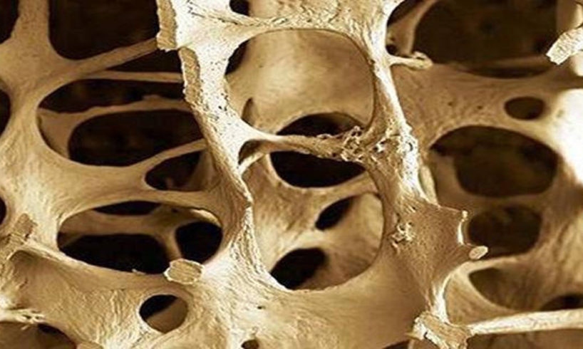 csontritkulás kezelés az emberek azt jelenti