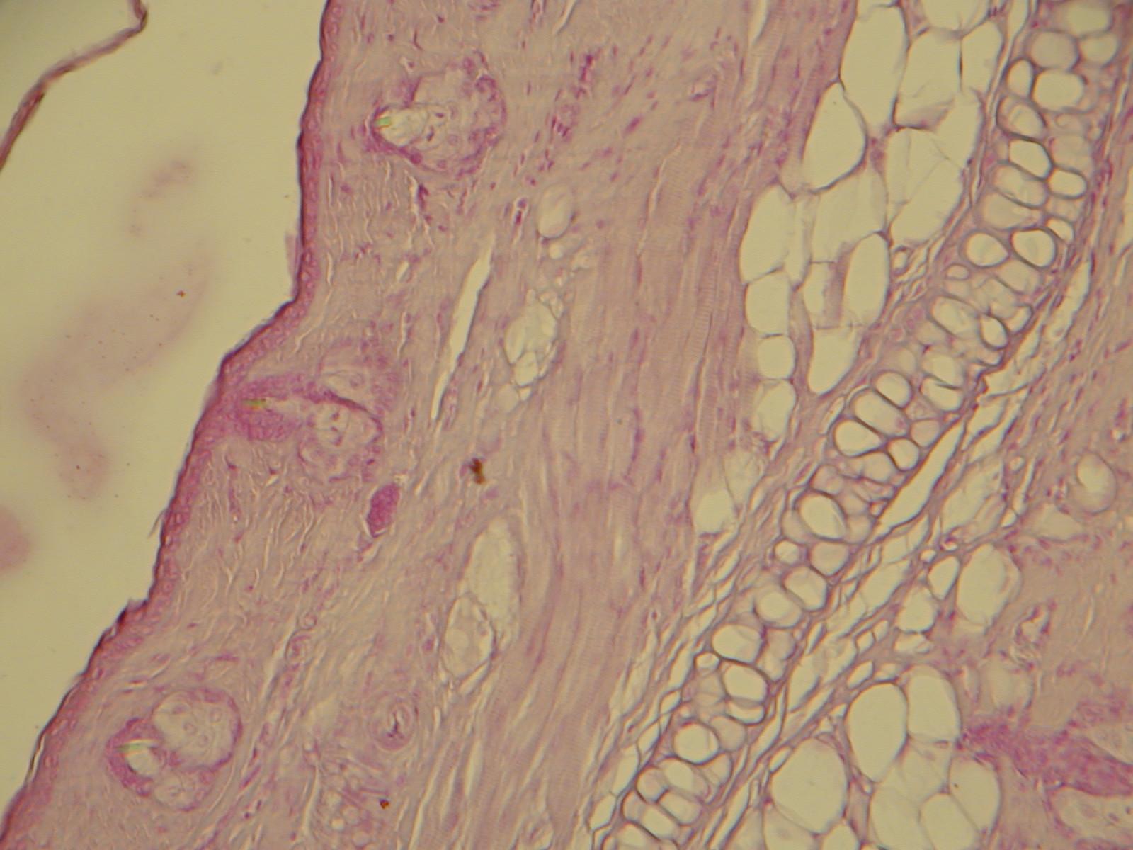 a kötőszövet folyékony porc kenőcsök a könyök ízületi fájdalmak kezelésére
