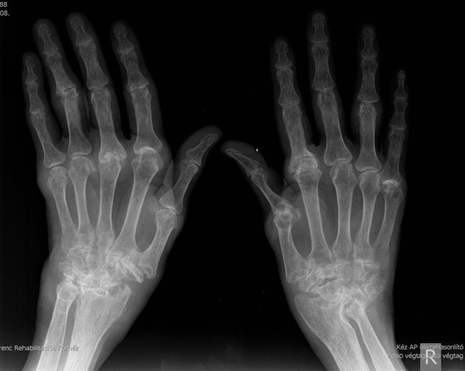 Deformáló arthrosis a bokaízület - okai, tünetei és kezelése