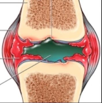 térdízület kezelés ízületi tasak