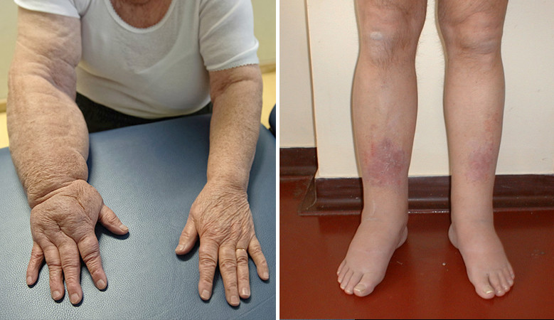 milyen gyógyszerek a kezek artrózisának kezelésére