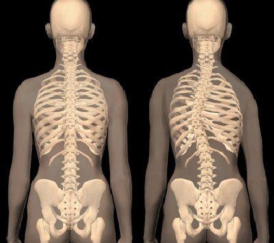 mellkasi gerinc artrózis kezelés vodka kompresszor ízületi fájdalmak kezelésére