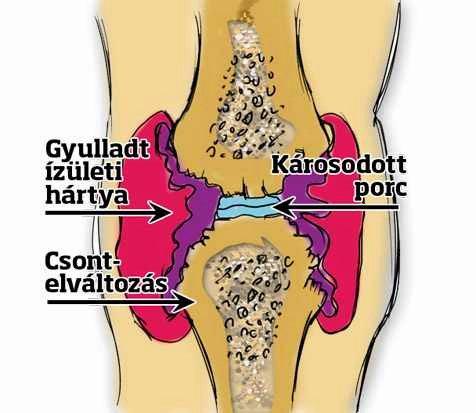 csuklófájdalom lábfájdalom a kis ízületekben