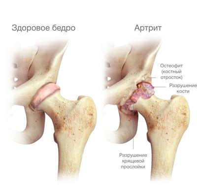 deformáló csípő coxarthrosis