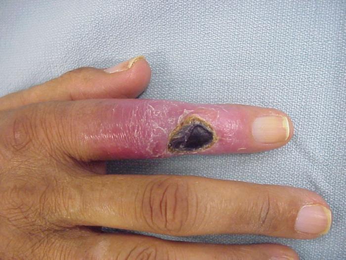 vélemények az artrózis kezelésére szolgáló gyógyszerekről