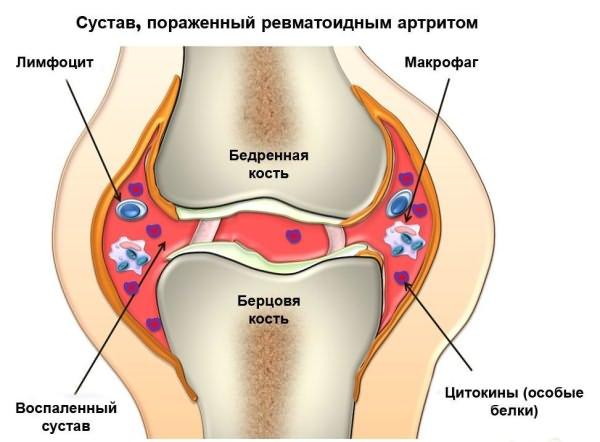 a bokaízület deformáló artrózisának tünetei 1 fok