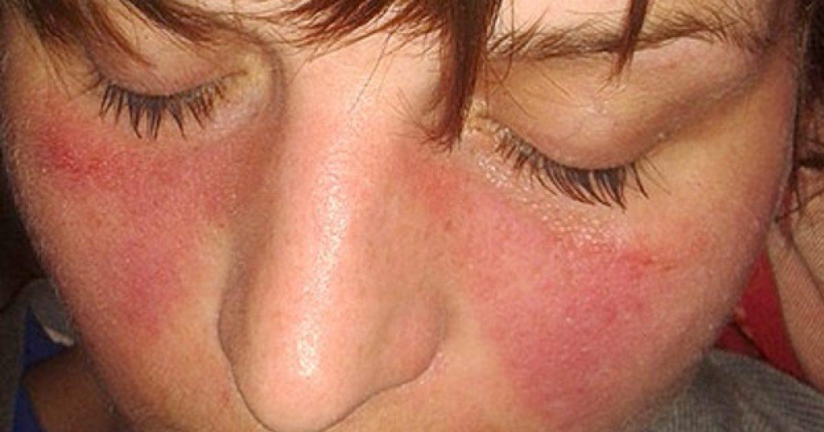 fájdalom a gerincben és az összes ízületben balzsamok és dörzsölés ízületi fájdalmak miatt