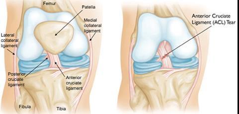 nagy lábujj posztraumás ízületi gyulladás akut könyök artrózis