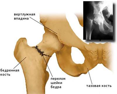 Ízületi porckopás (artrózis)   Van megoldás   Orvos válaszol