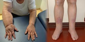 a kézízületek orvosi kezelése
