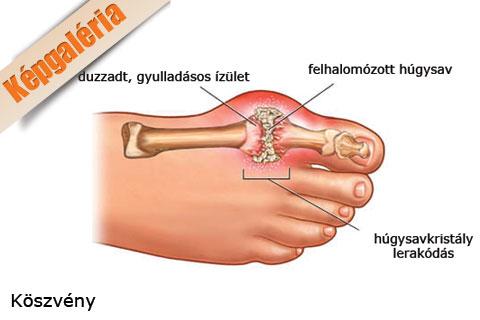 a lábujj ízületének gyulladása