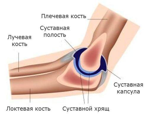 a térd artritiszének klinikai képe a térd osteochondrozisának kezdeti stádiuma