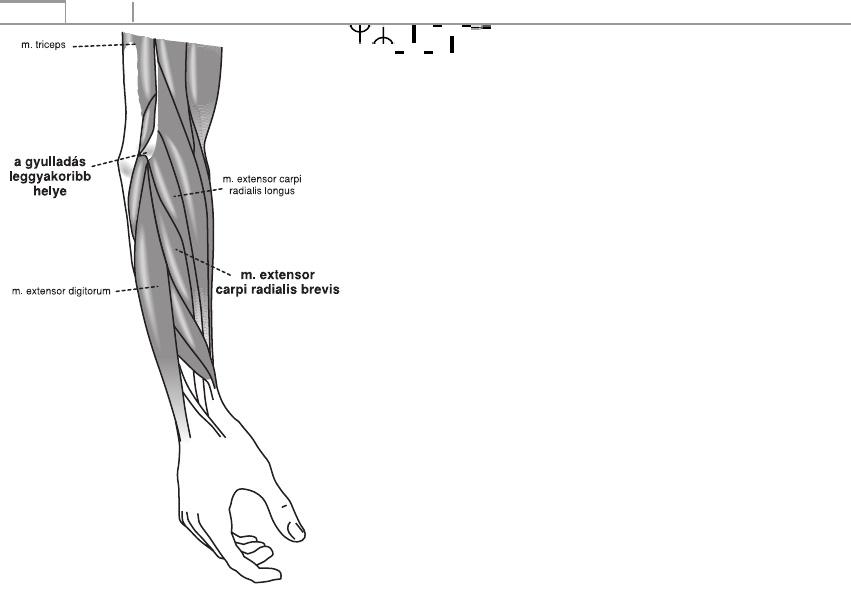 artritisz artrózis kezelési tippek a lábízületek fájnak a futás után, mit kell tenni