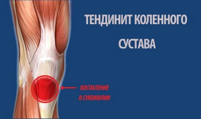térdízület fáj a futás után lehetséges melegedni a vállízület ízületi gyulladása