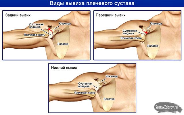 térdbetegség szinovitisz kezelése térdízületi tünetek pattanása