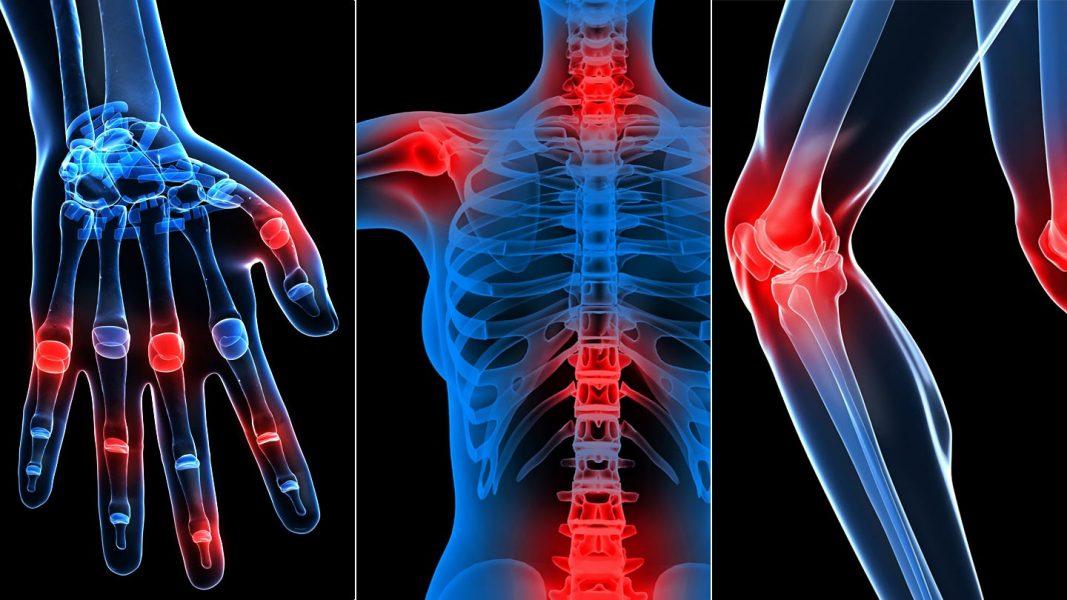 ízületi polyosteoarthrosis kórtörténet a térd artrózisának elektroforézis kezelése