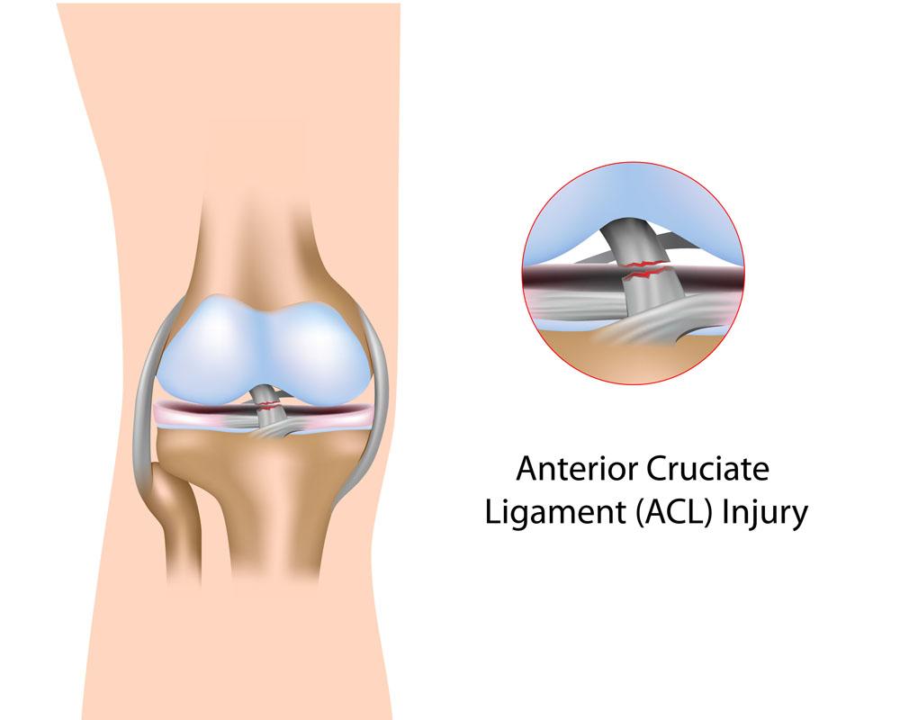 a térd gonartrosisának 2 fokos kezelése deformáló vállízület osteoarthrosis hogyan kezelhető