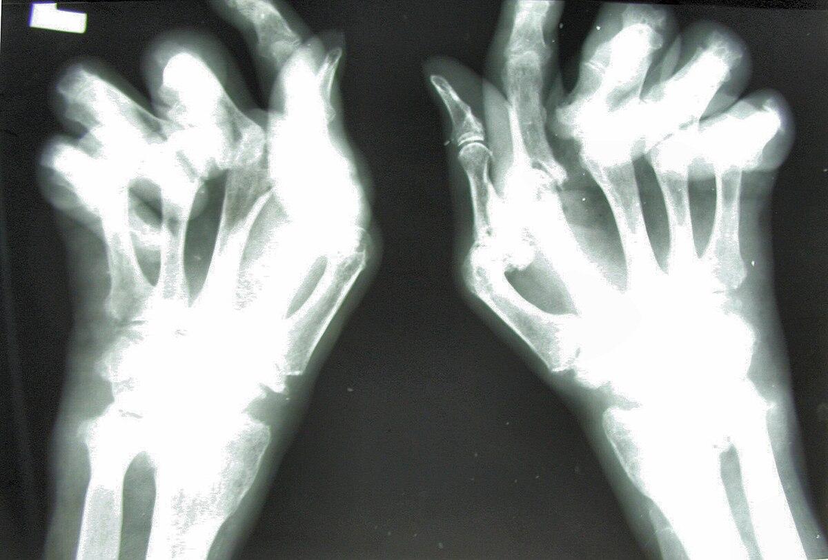 arthrosis rad jelei