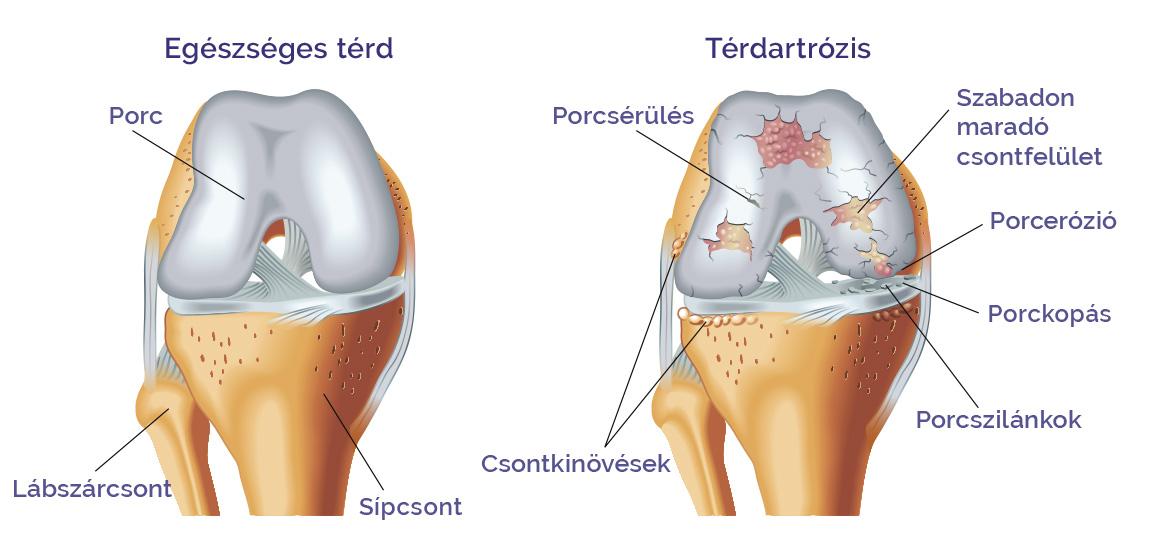 artrózis kezelése montenegróban