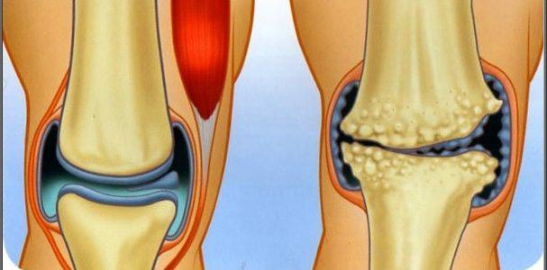 az artrózis kezelést okoz az ízületek 25-kor fájnak