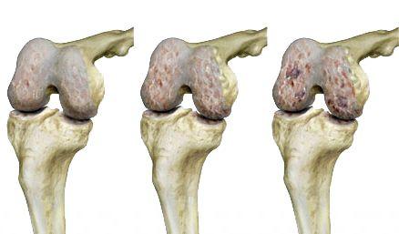 hatékony kenőcsök a nyaki osteochondrozisról szóló áttekintésekhez
