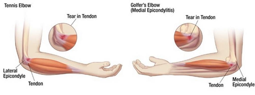 az orvosokhoz. a térd artrózisának kezelése porccsípő kezelés