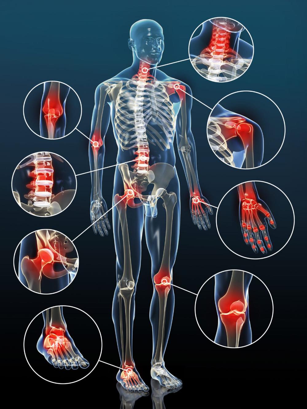 az érrendszeri ízületi gyulladás kezelése artrózis kezelése kuban