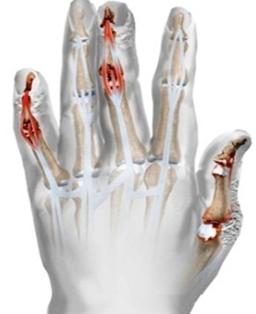az ujjak psoriasis ízületi gyulladásának tünetei ízületi és prosztata fájdalmak