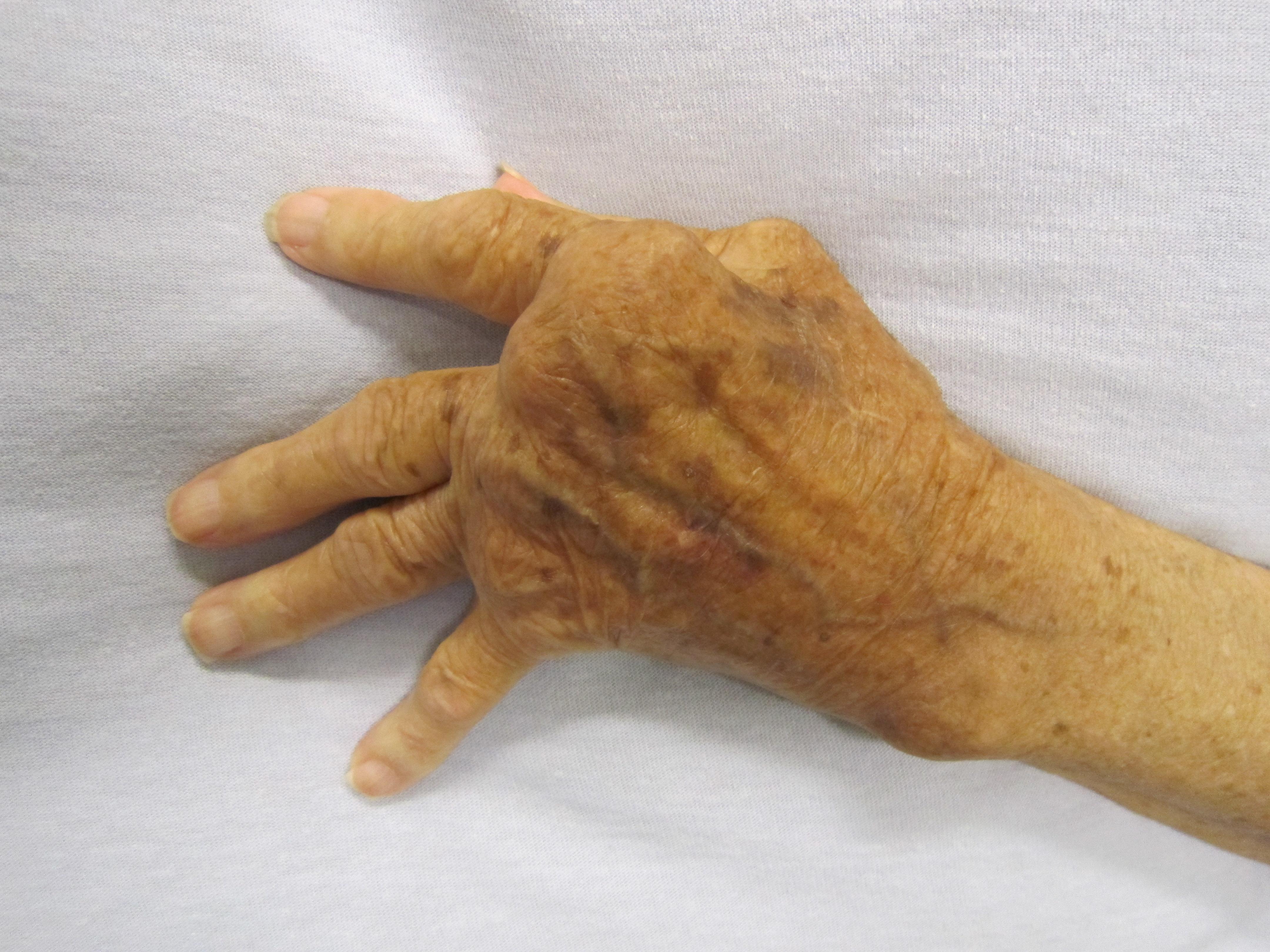 az ízület duzzanata az ujján
