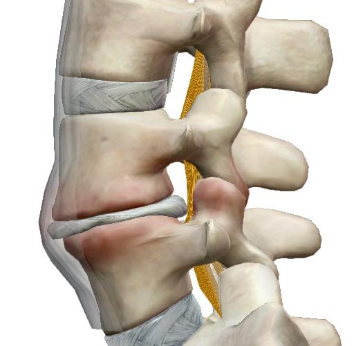 A gerincízületi gyulladások okai, tünetei