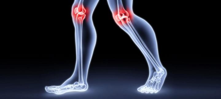 csípő zömök artrózis