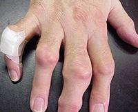 milyen kenőcsöt kell alkalmazni a mellkasi régió osteochondrozisához ultraton arthrosis kezelés