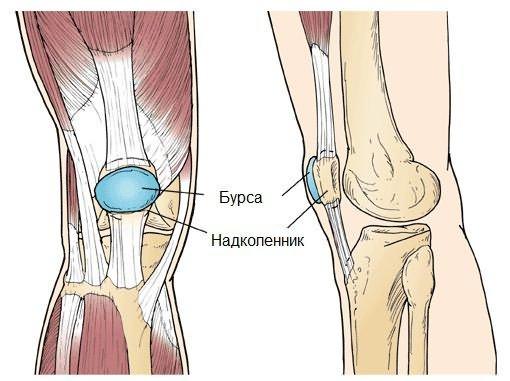 térd chondromatosis hogyan kell kezelni jó kenőcsök a térd artrózisához