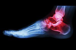 a lábujjak lábfejének interfalangealis artrózisa háti fájdalomcsontritkulás kenőcsei
