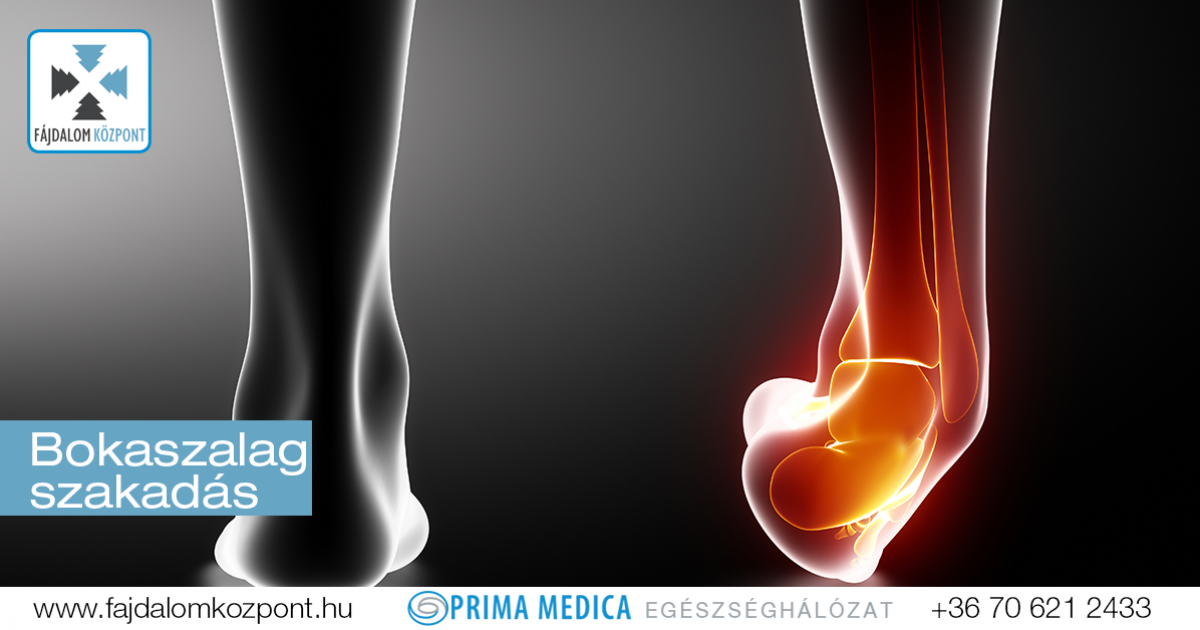 orvos ízületi fájdalom glükózamin-kondroitin a bőr számára