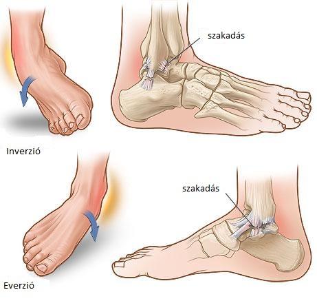 bokaízület fájdalma sérülés után