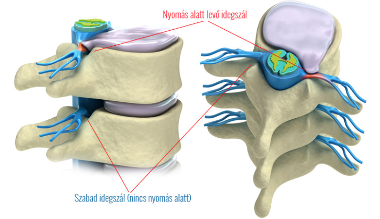 térd artrózisának kezelése magnetoterápiával tabletták és kenőcsök ízületi fájdalmak kezelésére