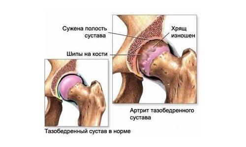 csípőfájás, sprain