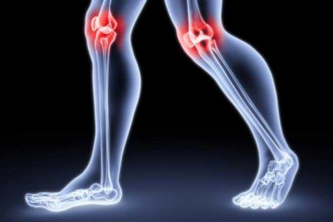 hogyan lehet hatékonyan kezelni a térd gonartrózist a térd keresztező ligamentuma károsodásának kezelése