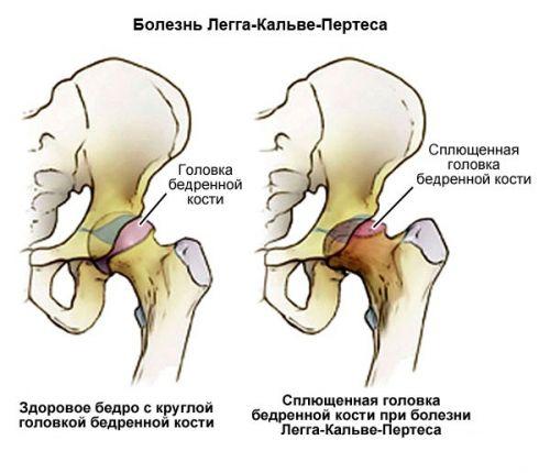 ízületek és minden izom fájdalma amely segít a csípőfájdalomban