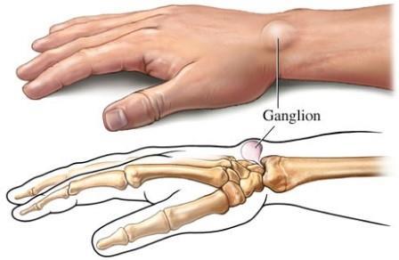 A bursitis (nyáktömlőgyulladás) és tünetei