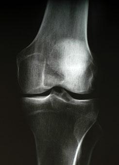 lábduzzanat artrózisos kezeléssel gyulladáscsökkentő izmok és ízületek fájdalmainak kezelésére